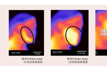 """揭秘射频美容仪功效:初普TriPollar如何平衡射频""""有效能量""""和""""智能安全"""""""